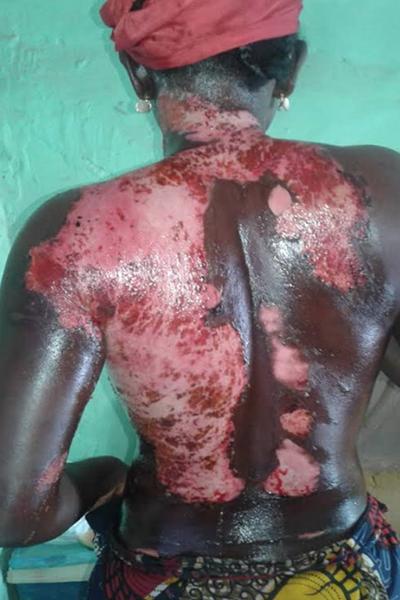 ( Ne cliquez pas si vous êtes sensible ) : Une femme ébouillante sa co-épouse à Kaffrine, des images insupportables