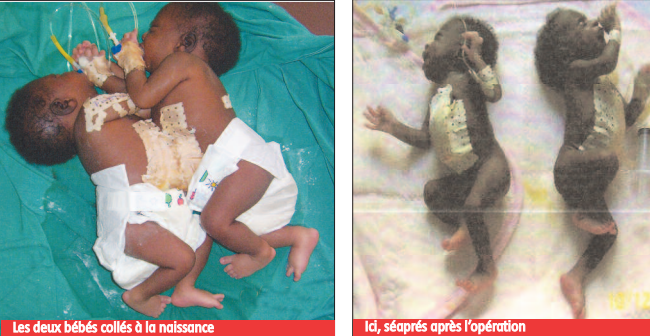 Séparées avec succès… à l'hôpital Le Dantec:  Les sœurs siamoises de Yoff ont 15 ans