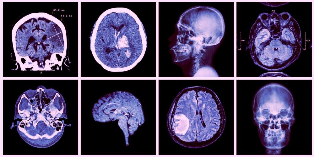 Accident vasculaire cérébral: les signes qui doivent alerter