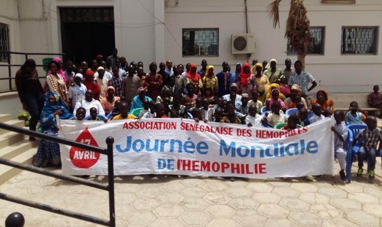 Santé : 239 cas d'hémophiles recensés au Sénégal