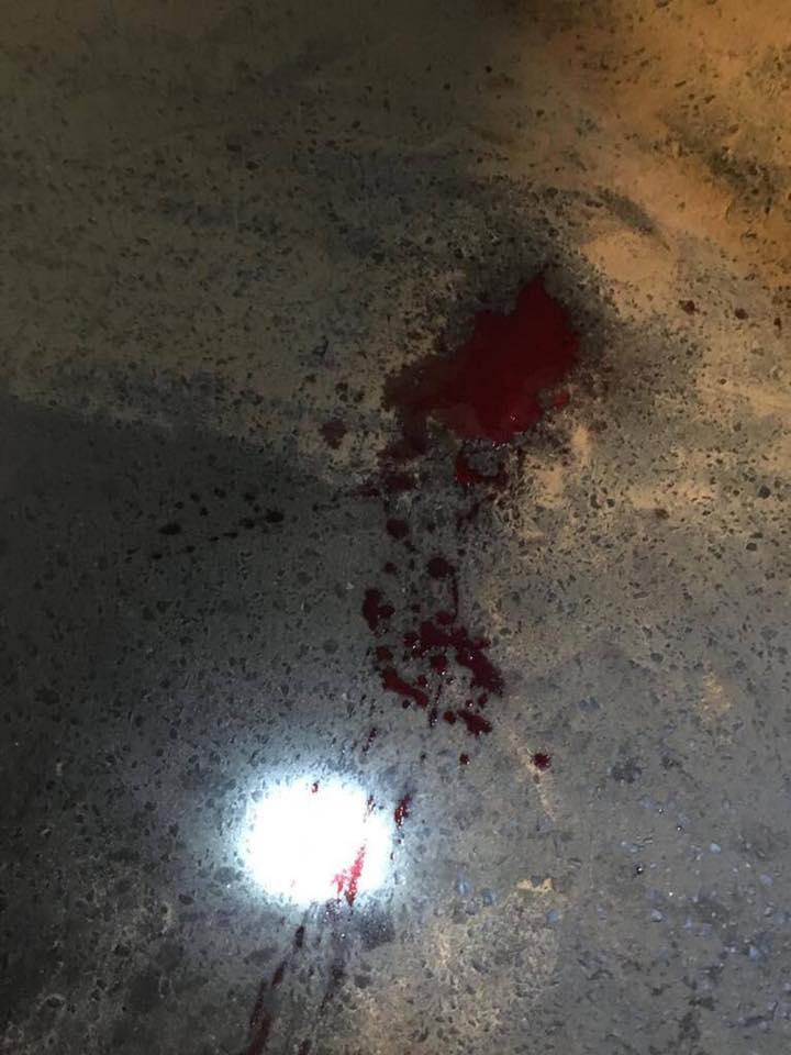 Un conducteur d'un 4x4 L200 Hillux DK 4729 BH agresse sauvagement un chauffeur de taxi