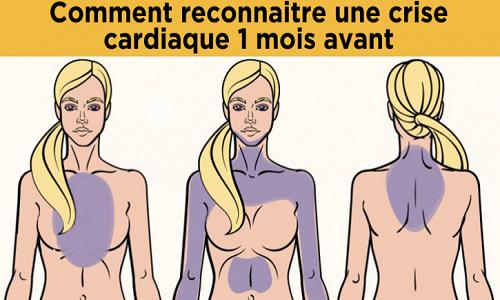 Un mois avant une crise cardiaque, votre corps vous envoie ces 8 signaux