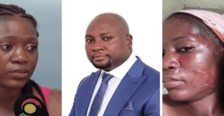 Ghana: Une femme battue par son amant marié et son épouse