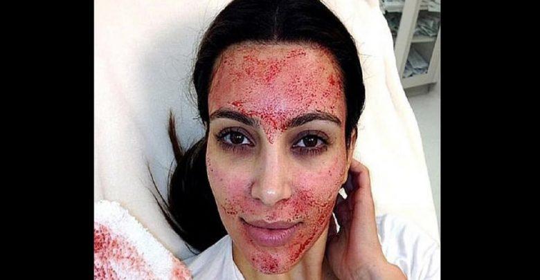 Kim Kardashian intente un procès contre un médecin esthétique