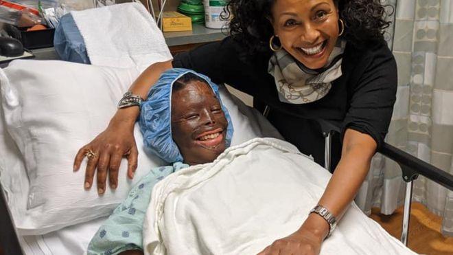 """Atsede Nguse, une survivante d'une attaque à l'acide: """"Il y a plus de bonnes personnes que de mauvaises"""""""