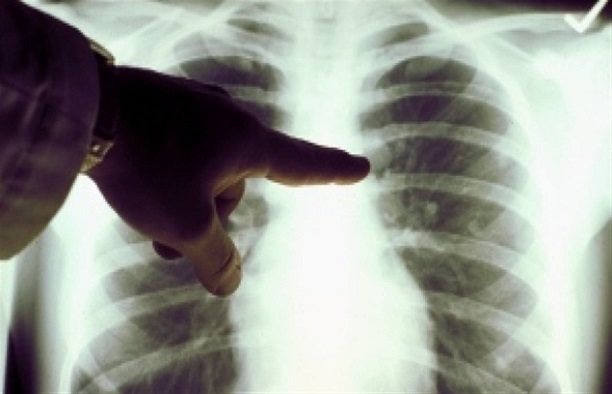 Santé - Elimination de la tuberculose en 2035: L'Etat mise sur la prise en charge des cas contagieux