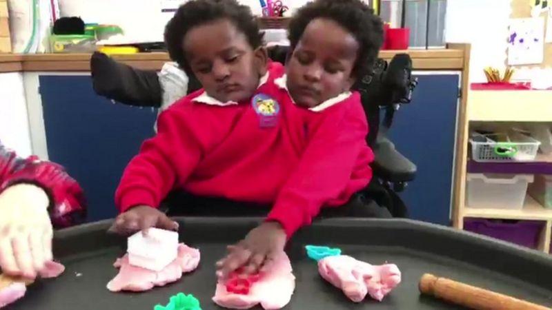 Les jumelles siamoises Marième et Ndèye font leur entrée à l'école, à Cardiff