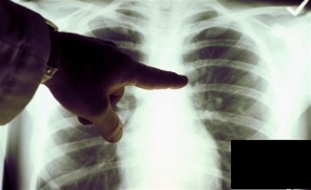 Tuberculose, Dakar tousse: Au Sénégal, 44% des cas de tuberculose se trouvent dans la capitale