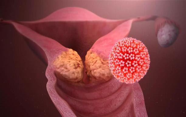 Cancer du col de l'utérus : 1937 nouveaux cas détectés et 1312 décès enregistrés en 2020
