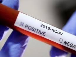 Lutte contre la Covid-19: Vers la production de tests rapides de diagnostic à Dakar