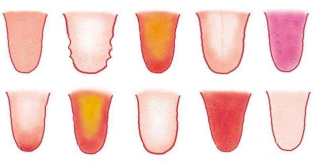8 problèmes de santé révélés par votre langue