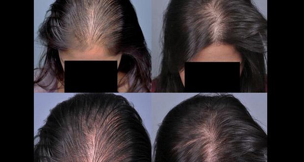 Accelerer pousse des cheveux naturellement