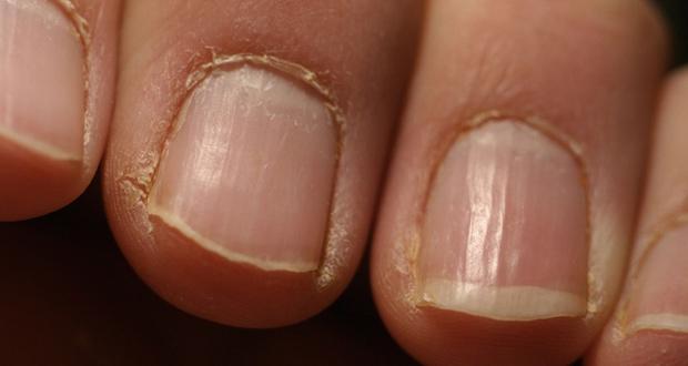Les ongles mamelonnés à bras comme traiter