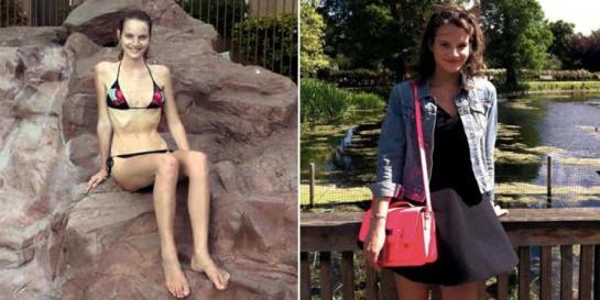 Une ex-mannequin, après avoir vécu l'enfer, raconte son histoire afin que cela n'arrive pas aux autres...