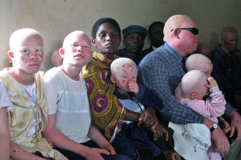 Horreur - Arrestation de dix Malawites soupçonnés du meurtre d'une Albinos