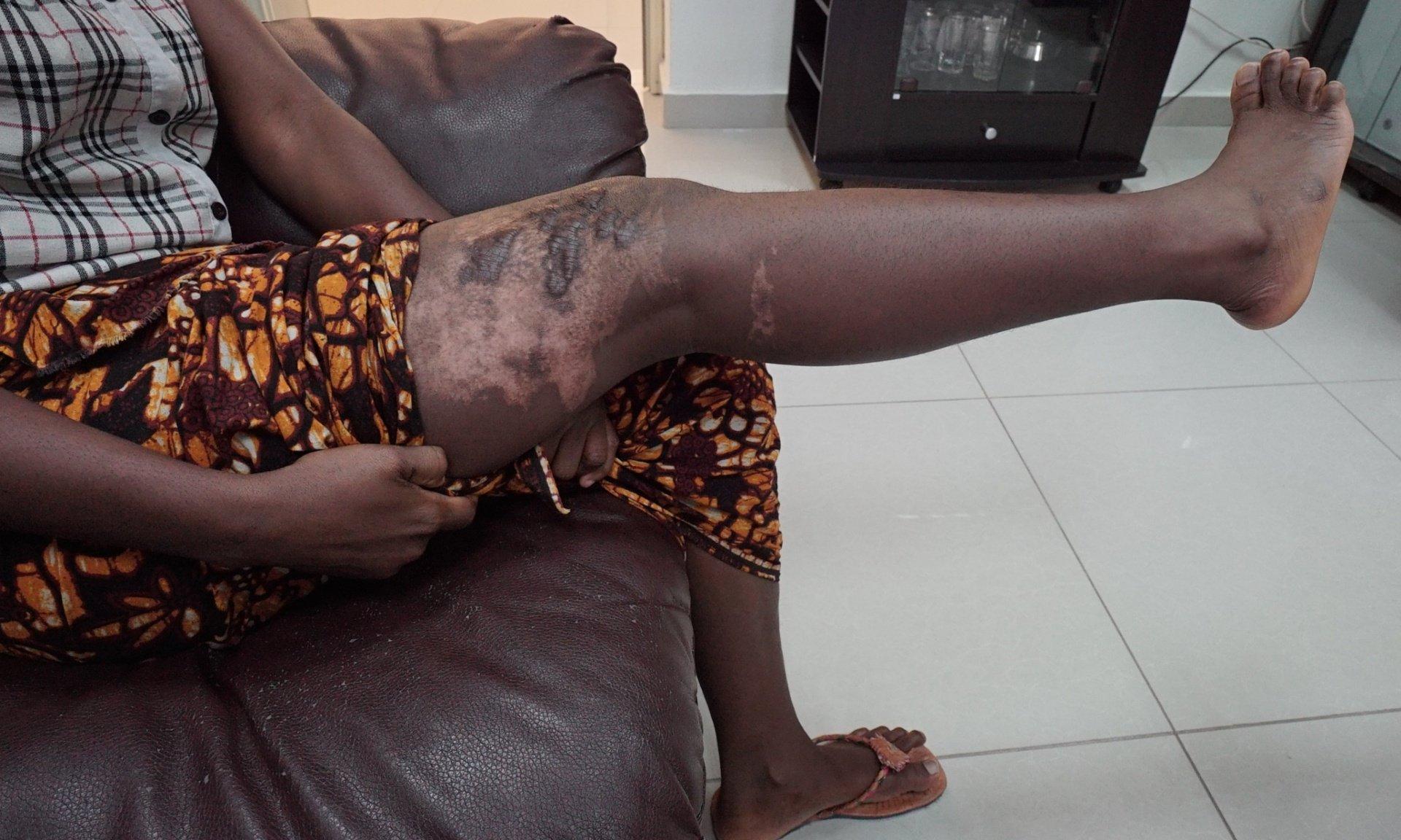 Sédhiou : Elle ébouillante une dame qu'elle soupçonne d'être la copine de son mari