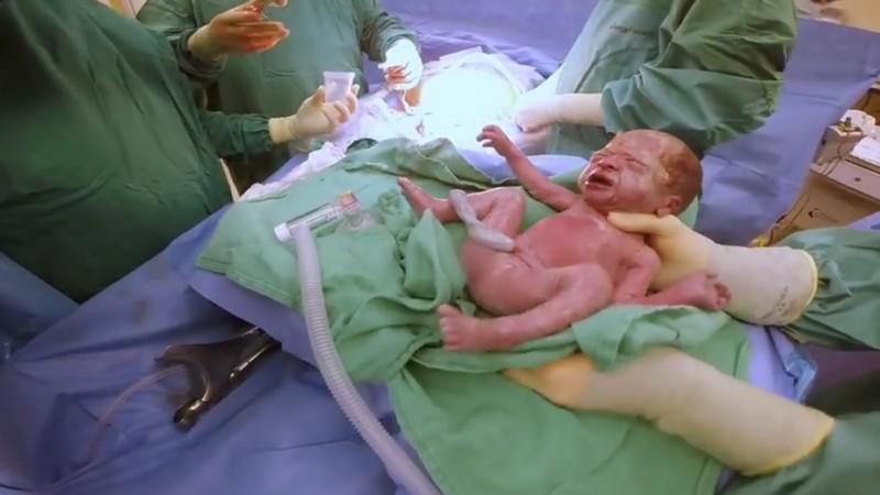 Une mère attendait des jumeaux normaux, mais lorsque les médecins lui ont montré cette photo, elle a eu le souffle coupé.