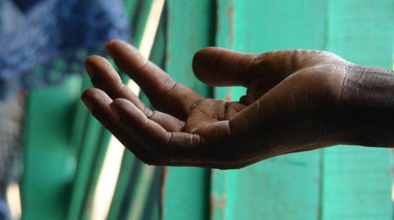 Rafle des mendiants à Mbacké – Les non-voyants en colère dénoncent leur arrestation