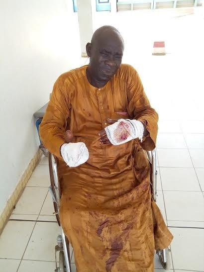 Diourbel : L'ancien footballeur Mamour Diaw sauvagement agressé par des Thiantacounes