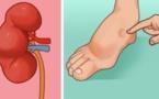 Un mois avant de faire un Avc, votre corps peut vous envoyer ces signes d'avertissement. Ne les ignorez pas!