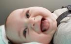 Atteint d'un syndrome rare, un bébé naît avec une langue disproportionnée