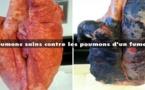 Aux fumeurs : ces 4 ingrédients peuvent nettoyer les poumons de la nicotine et du goudron