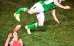 Photo-La terrible blessure de Seamus Coleman face au Pays de Galles, hier soir...