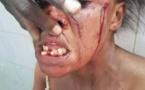 Touba : Une dame charcute et édente sa co-épouse