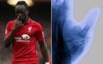 Liverpool : Bonne nouvelle pour la blessure de Sadio Mané !
