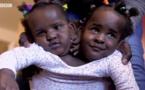 VIDEO - Ndèye et Marième, des jumelles siamoises qui luttent pour leur vie