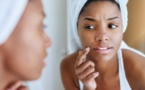 Trois recettes simples pour éliminer le duvet du visage naturellement