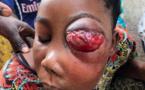 Photos: Un petit bouton à son l'œil évolue en une tumeur maligne