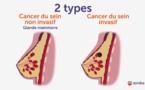 """VIDEO - """"Il y'a différents types de cancer du sein, chaque femme doit s'autopalper pour...."""""""