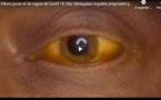Fièvre jaune et 2e vague de Covid-19: Des Sénégalais inquiets proposent quelques remèdes...