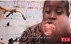 Une fille a une tumeur au visage de la taille d'un ballon de foot