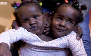 VIDEO-Ndèye et Marième, des jumelles siamoises qui luttent pour leur vie