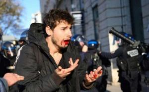 Violences policières à Lyon (France) : deux agents renvoyés en correctionnelle pour avoir frappé un manifestant