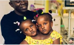 Les siamoises Sénégalaises Ndèye et Marème marchent pour la première fois