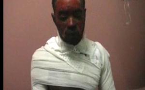 Image et vidéo choc : Il annonce à sa femme qu'il a pris une deuxième épouse, elle lui verse dessus de l'huile chaude