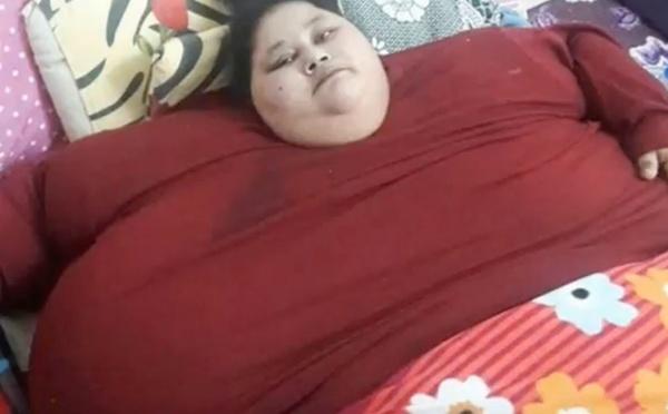 Insolite : Une Egyptienne de 500 kg commence en Inde sa préparation chirurgicale pour perdre du poids