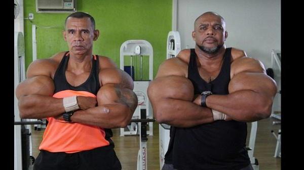 Brésil: ils s'injectent des produits chimiques pour gonfler leurs biceps (Photos)