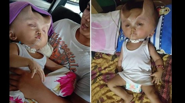 Insolite : Un bébé développe des « cornes » après une opération chirurgicale (Photos)