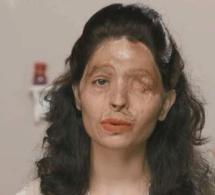 Défigurée à l'acide, elle va défiler à la Fashion Week