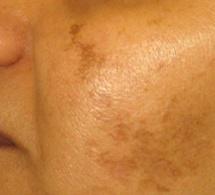 Débarrassez-vous des taches brunes,et de l'hyperpigmentation avec deux ingrédients