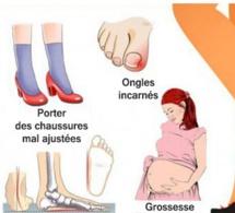 Causes des douleurs aux pieds et comment y remédier