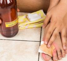 Voici comment soigner les ampoules aux pieds naturellement