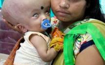 Abandonné par ses parents, ce bébé hydrocéphale a retrouvé une famille