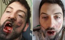 Brûlé par l'explosion de sa cigarette électronique, il perd 7 dents
