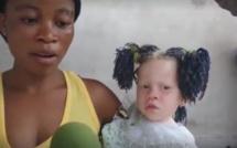 Insolite: Elle a été rejetée par son compagnon pour avoir mis au monde une petite fille albinos (vidéo)