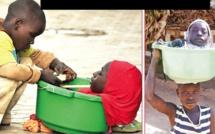 Nigéria: Elle n'a qu'une tête, un tronc et des bras, et peut vivre dans un petite bassine (vidéo)